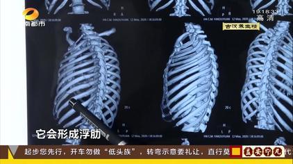 骨折 肋骨